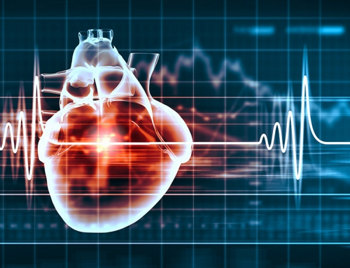 Switching MLM Software Is Like Open-Heart Surgery